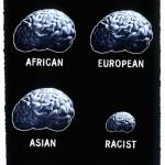 Tamaño cerebral